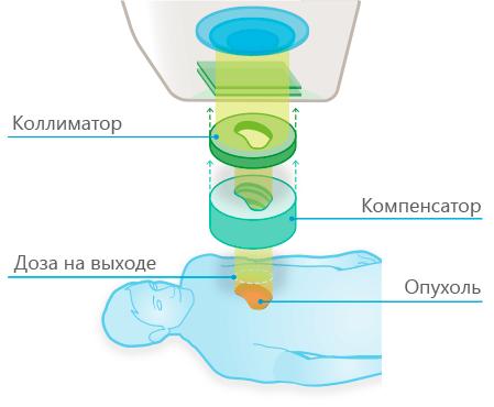 Принцип протонно-лучевой терапии