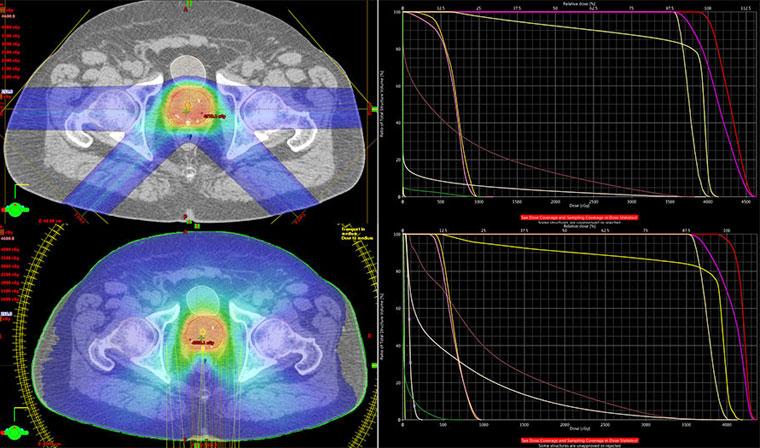 Сравнение облучения методов протонной и конформной лучевой терапии