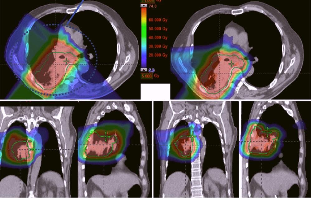 после лечения рака яичников
