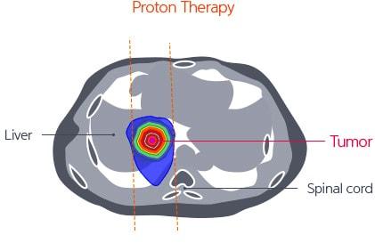 протонная терапия при раке печени