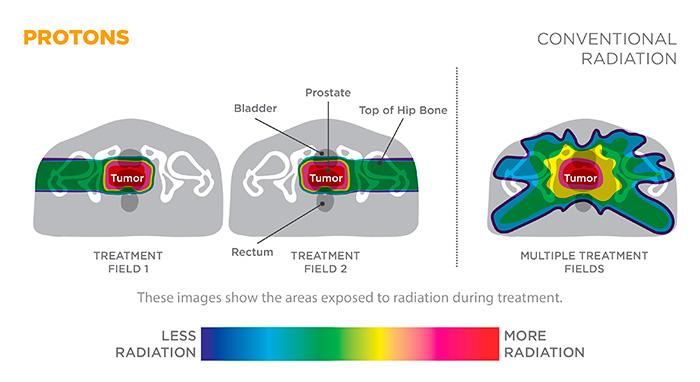 Сравнение лучевой нагрузки на органы малого таза при IMRT и протонной терапии рака простаты